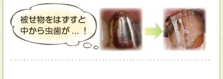 「CEREC(セレック)」を使った審美歯科治療