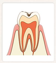C1:歯の表層(エナメル質)の虫歯