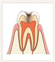 C2:歯の中(象牙質)の虫歯