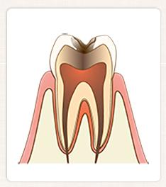 C3:神経まで達した虫歯