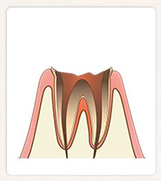 C4:歯の根まで達した虫歯