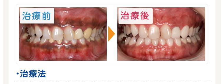 歯肉のメラニン除去 レーザー治療