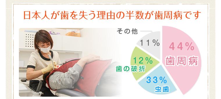日本人が歯を失う理由の半数が歯周病です